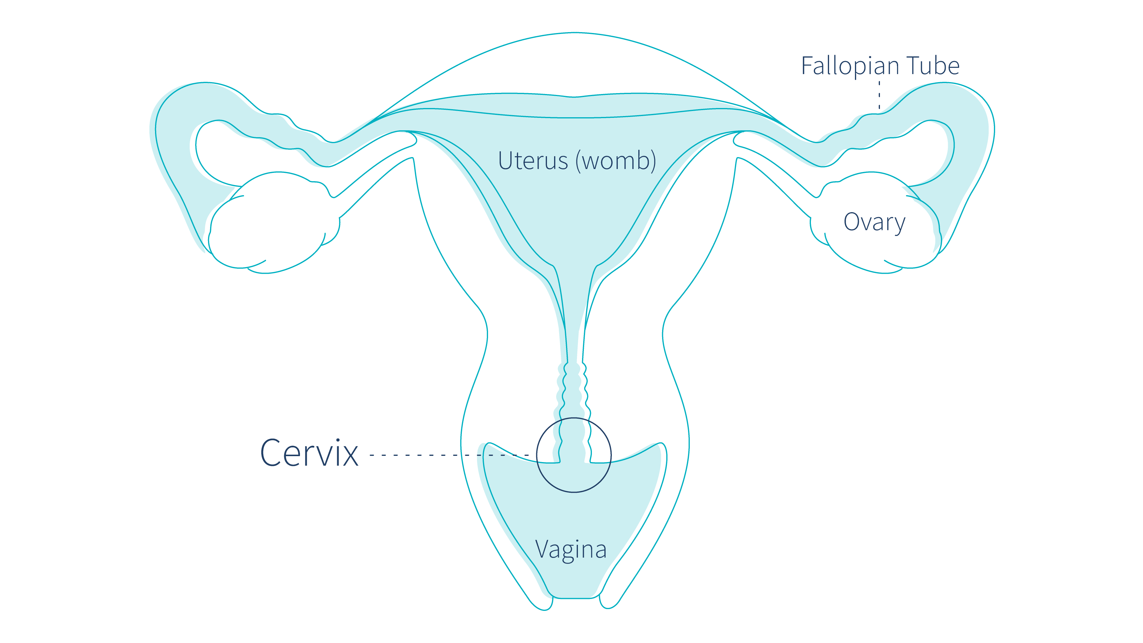 What-Is-Cervical-Cancer---Everything-You-Need-To-Know
