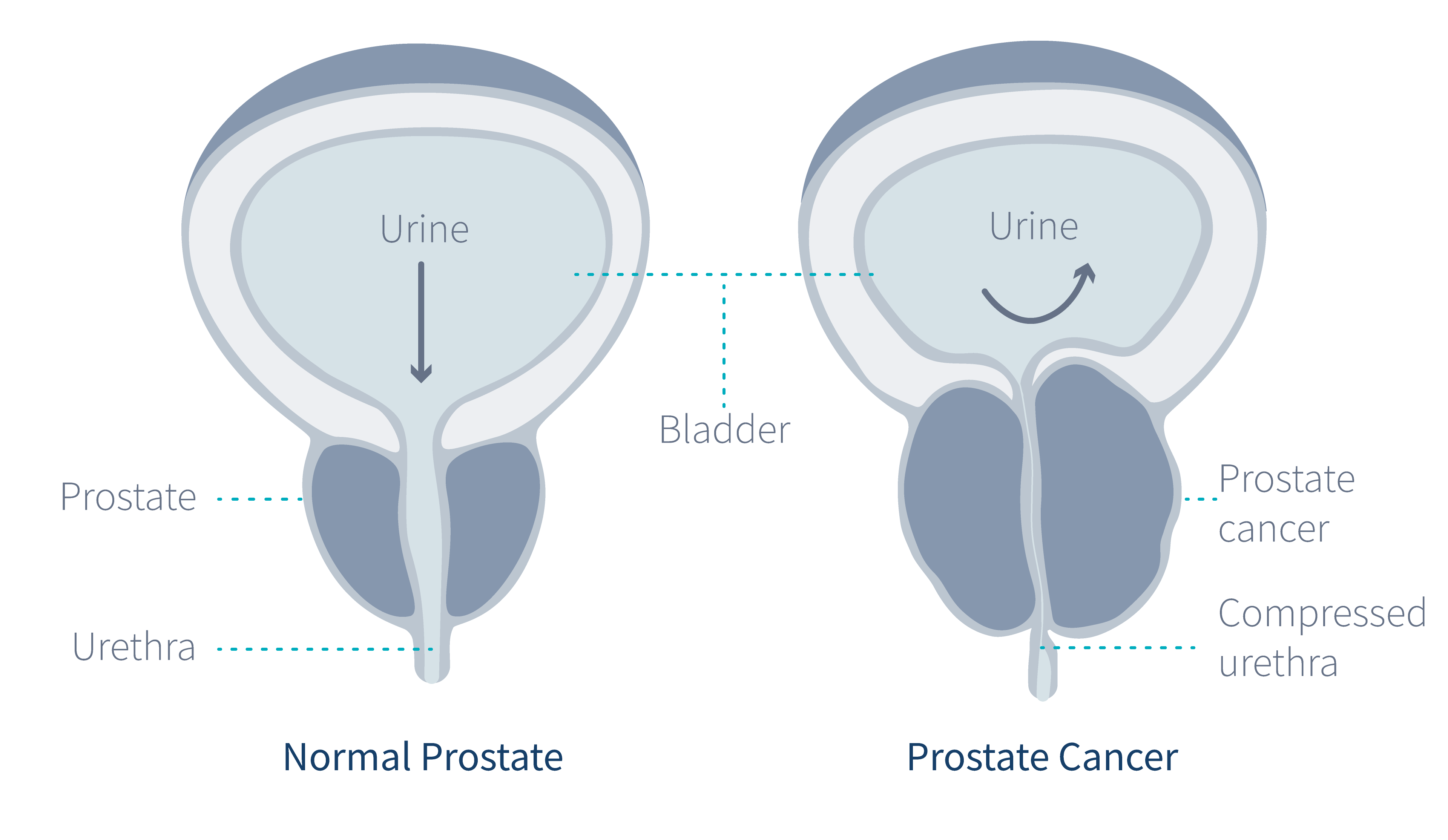 cancer-in-the-prostate-gland-diagram-
