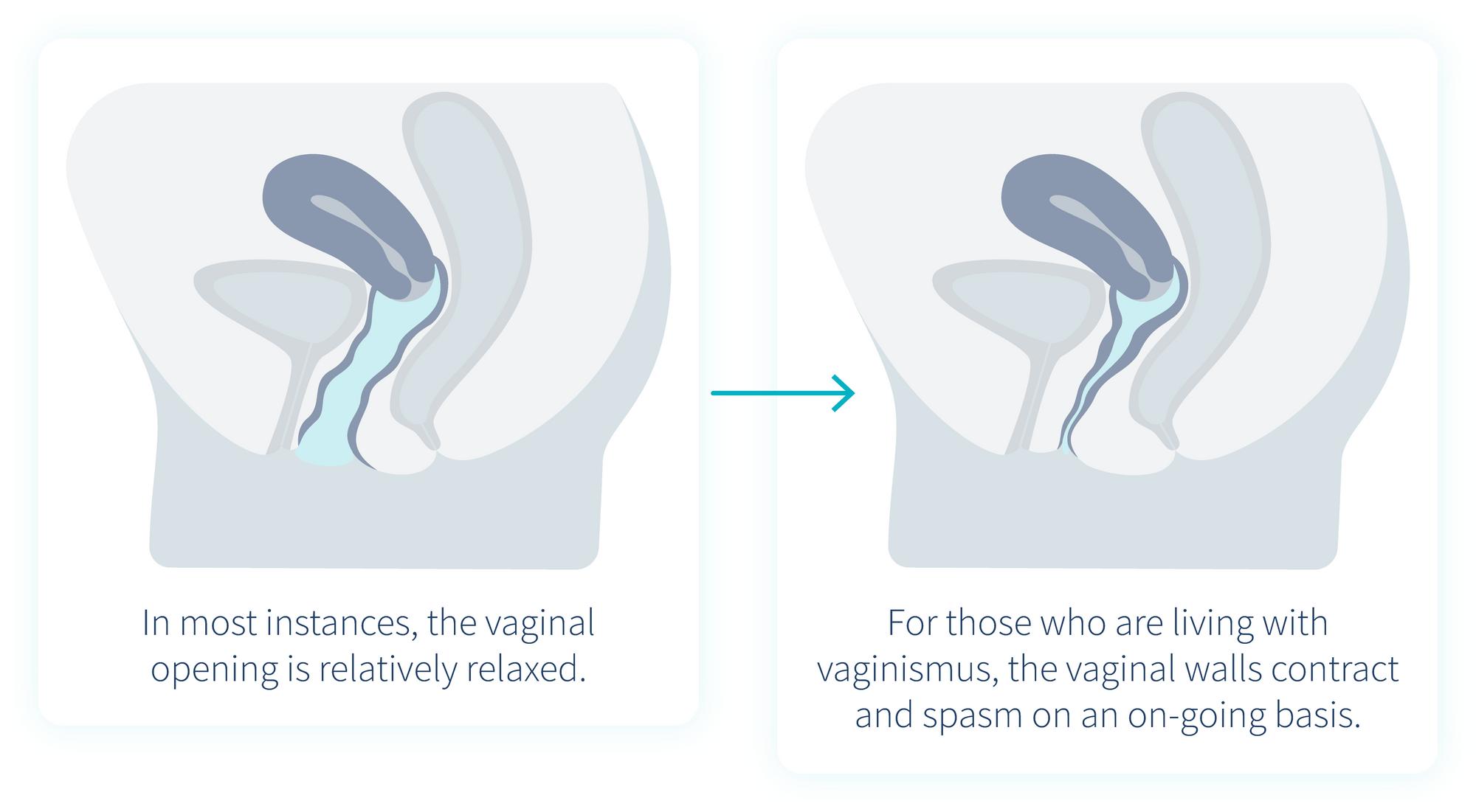 vaginismus-vs-no-vaginismus-1