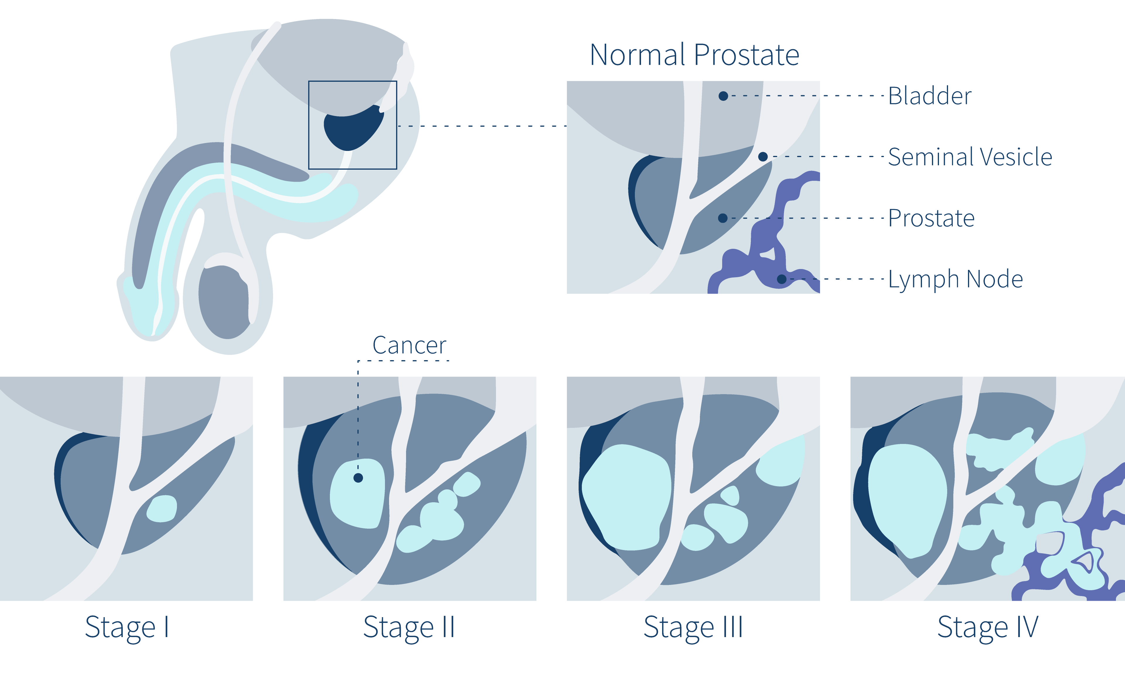 prostate-cancer-symptoms-stages-of-prostate-cancer-diagram