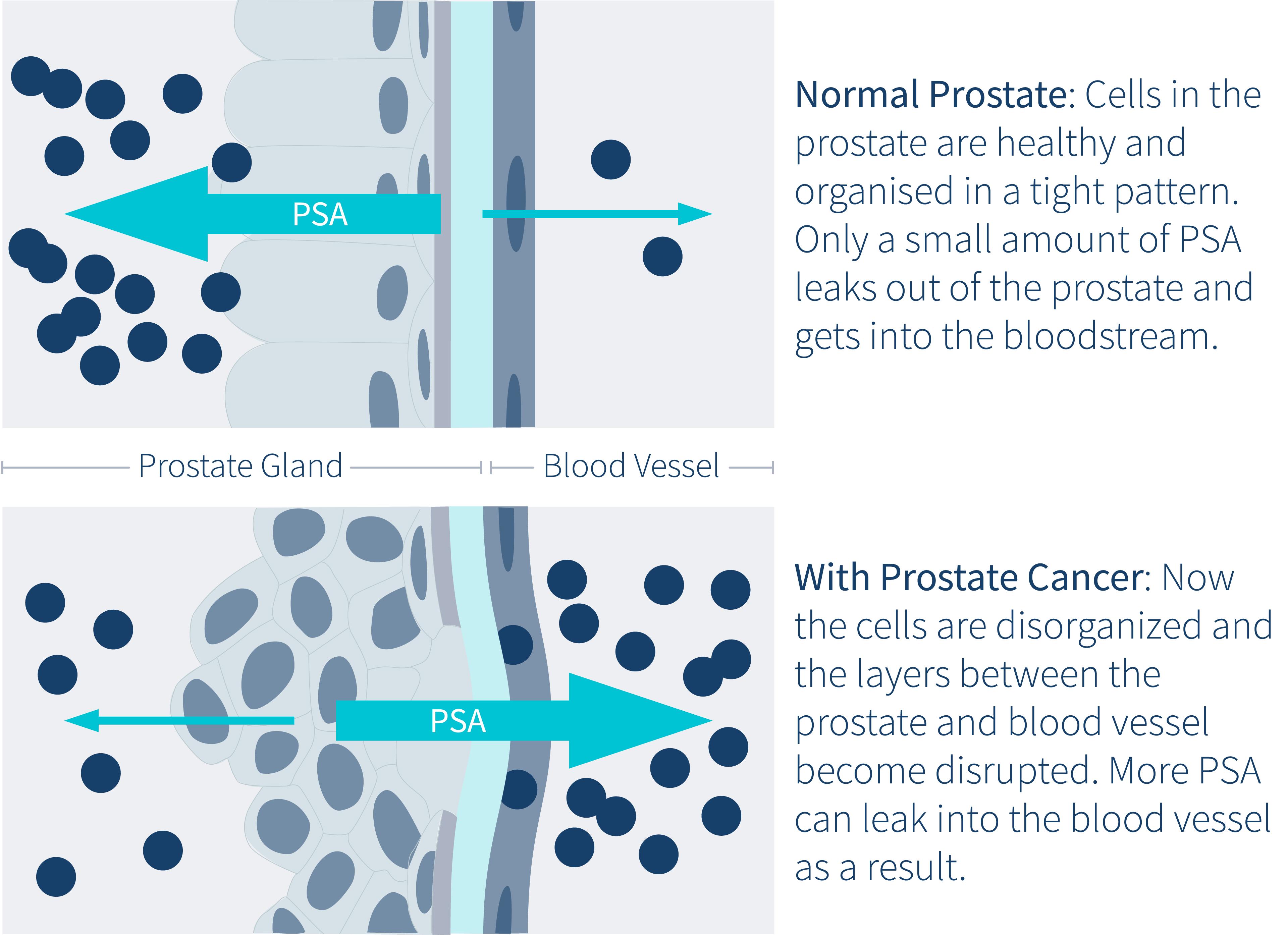 PSA-Prostate