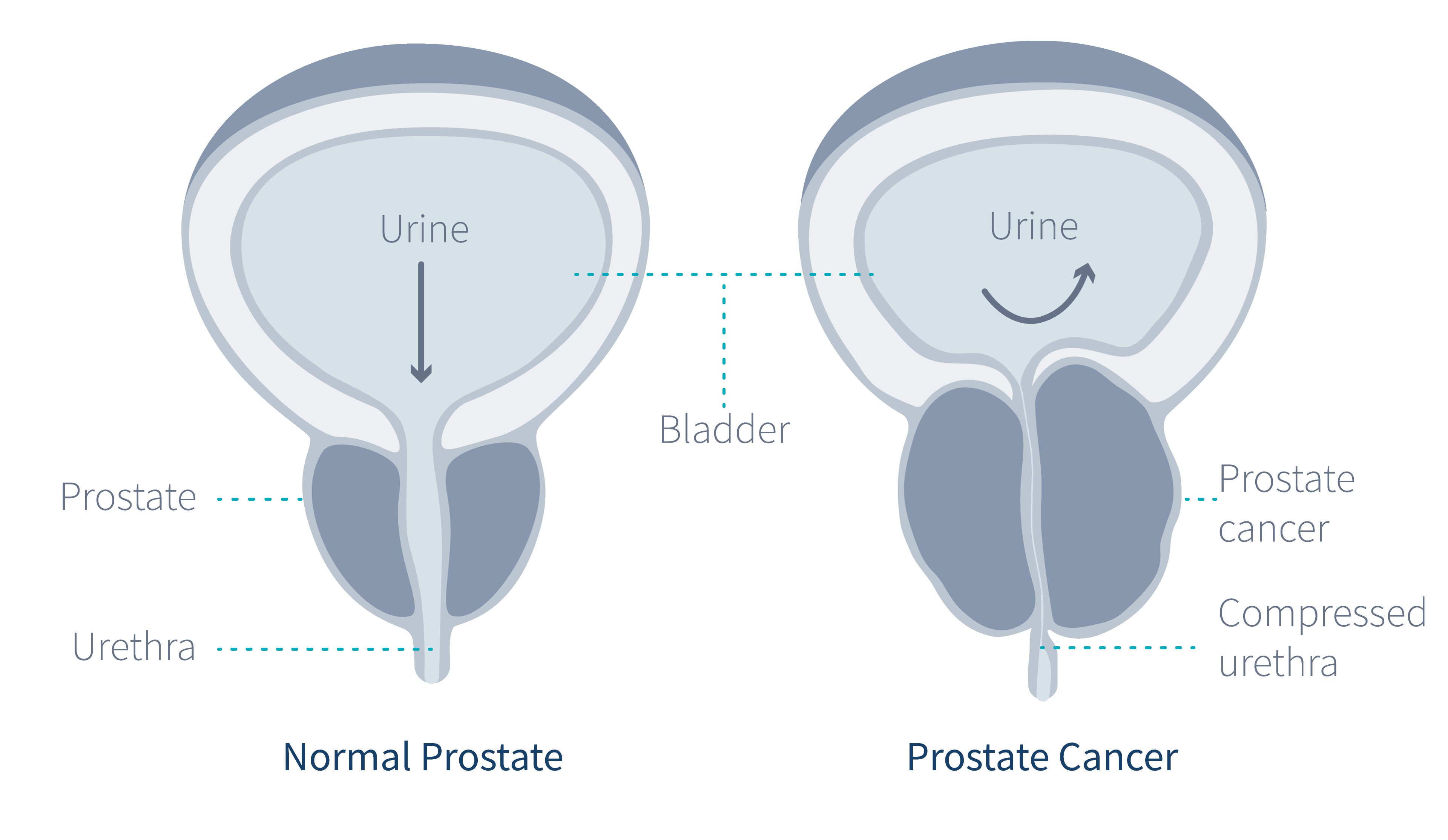 bladder-and-prostate-gland-1