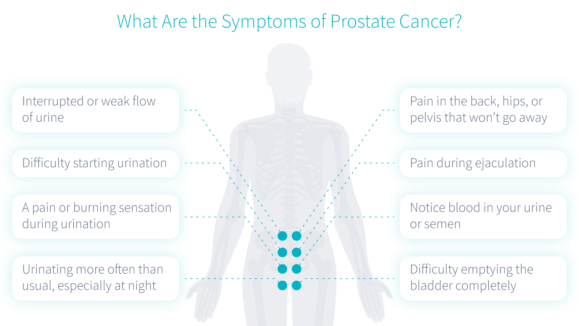 symptoms-of-prostate-cancer